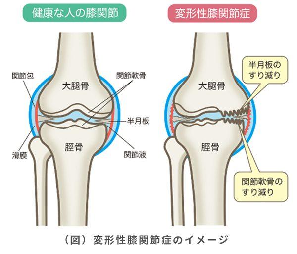 knee_01