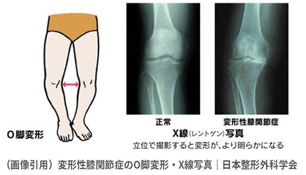 knee_02